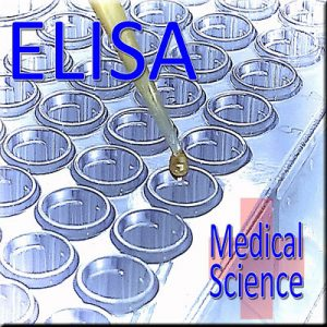 ELISA - Thinkers in Education Medical Science Workshops For Schools.  A drop from a micropipette into a microwell tray sets the mood of this two hour activity.